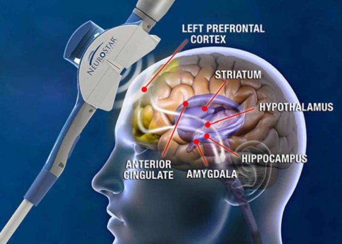 TMS-Magnetic-Brain-Stimulation